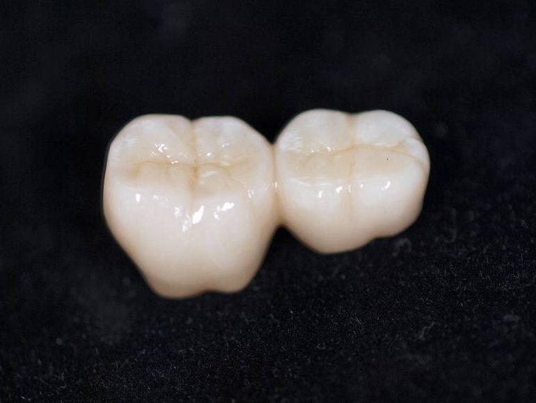 ジルコニア臼歯