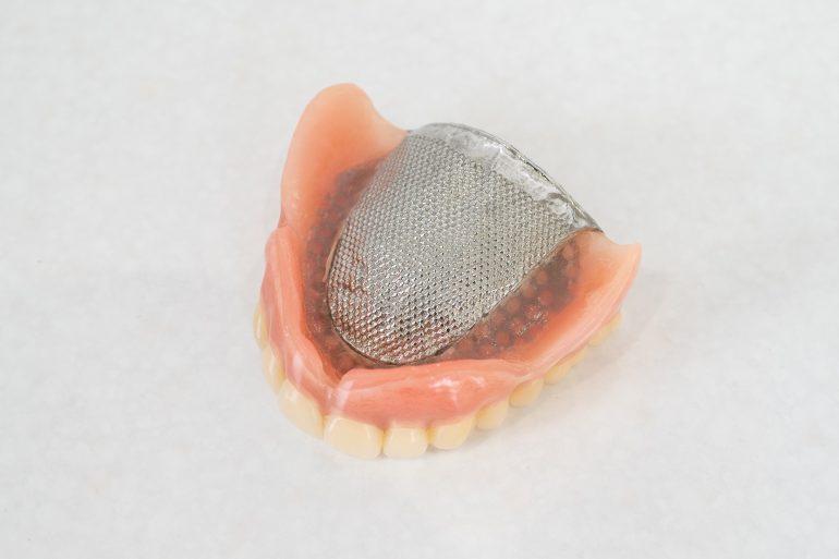 金属床|入れ歯