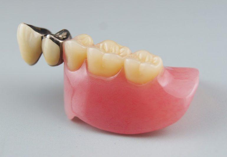 コーヌス義歯